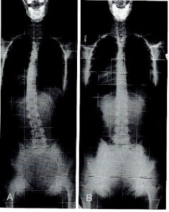 xray-ap-and-lat-full-spine